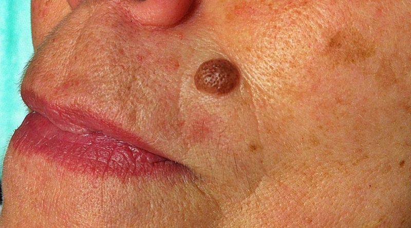 Remedios para eliminar las verrugas