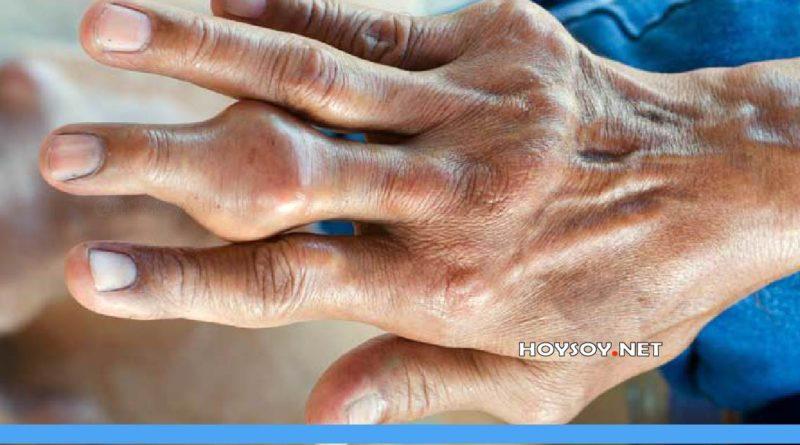 causas del ácido úrico-