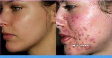 combatir el acné en la cara