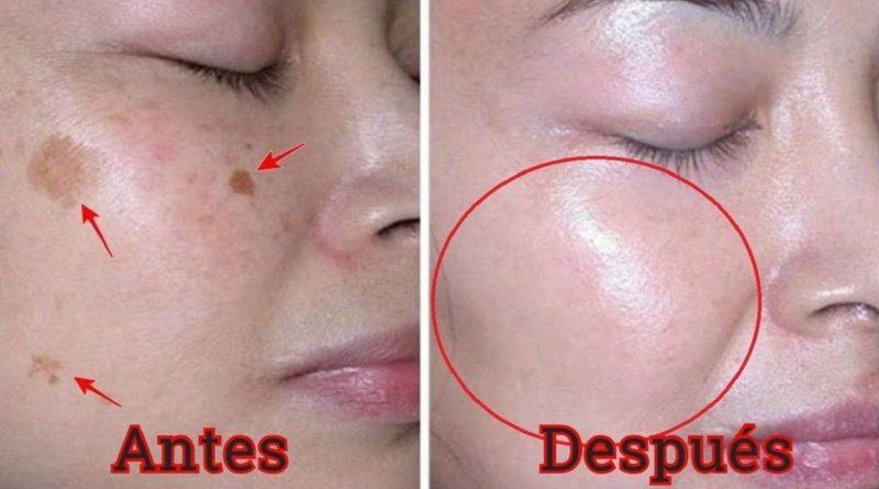 causas de manchas en la cara
