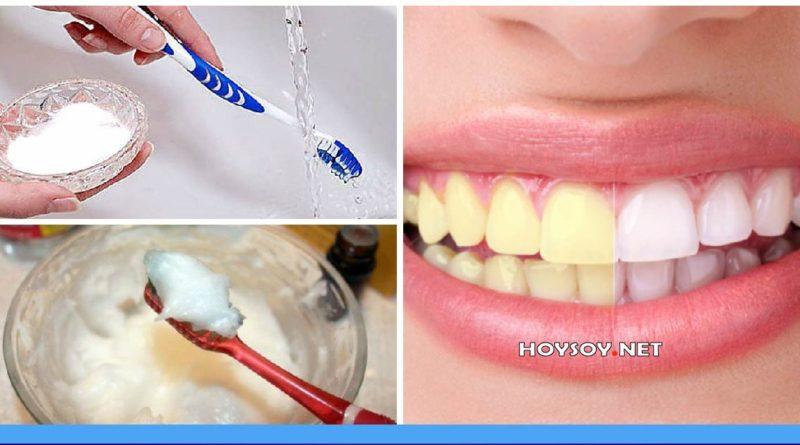¿Cómo blanquear los dientes?