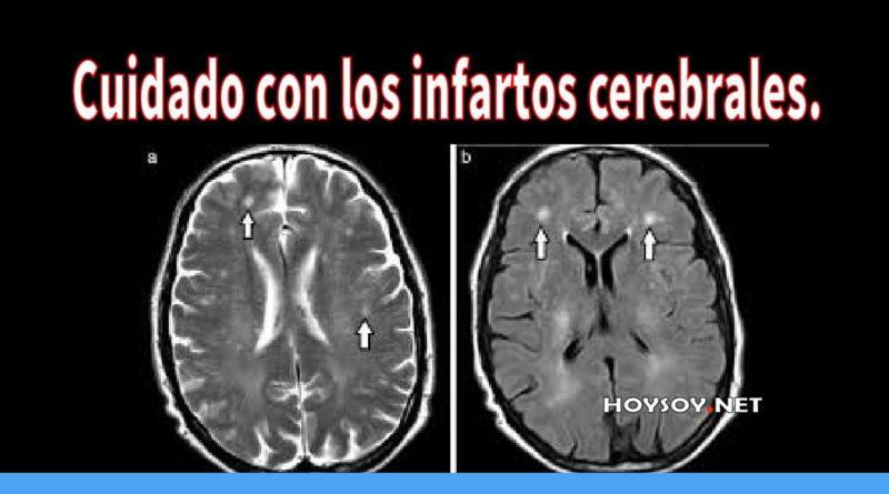 Cuidado con los infartos cerebrales.