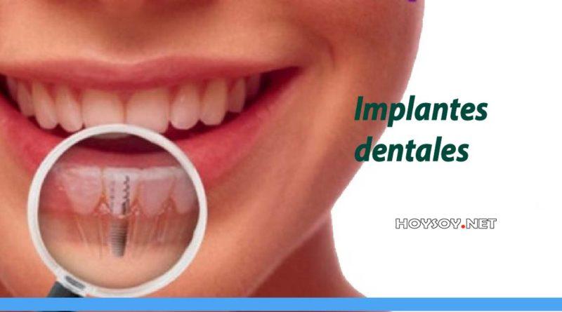 Cirugías de implantes dentales