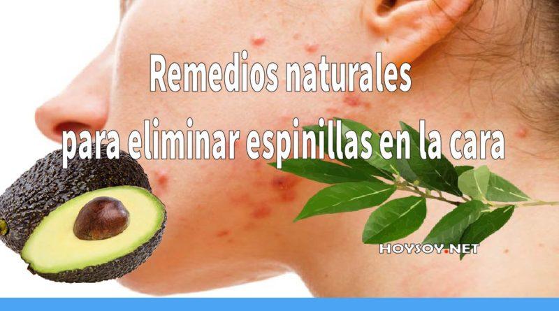 Remedios naturales para eliminar espinillas en la cara-01