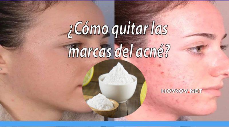 Como quitar las marcas del acne