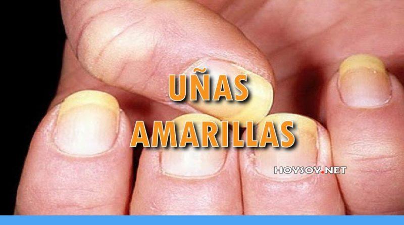 UÑAS AMARILLAS Y GRUESA