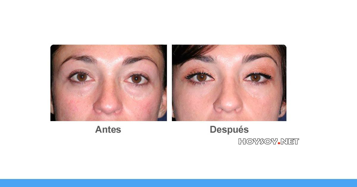 cirugía estética de ojos