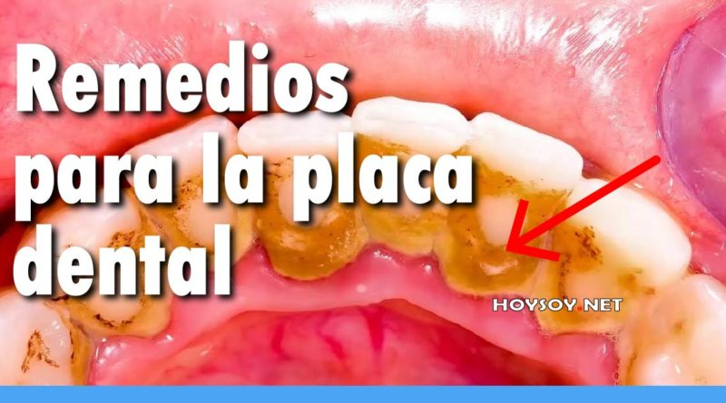 remedios y causas de la placa dental