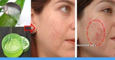 sábila para el acné