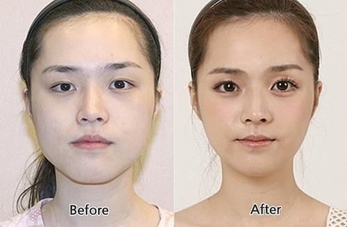 Cirugía estética de ojos una buena opción para verte más joven