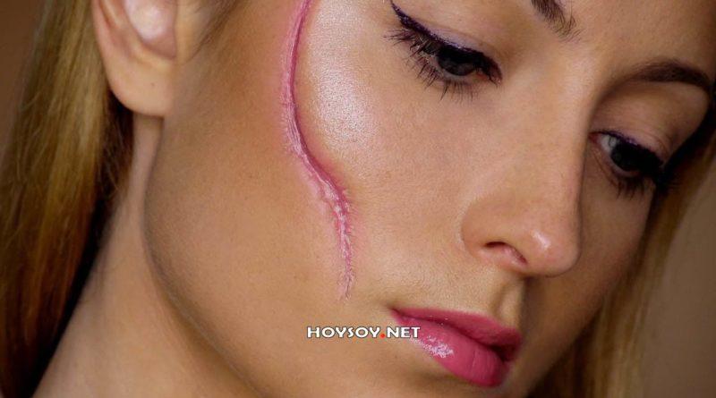 Cirugía plástica de cicatrices