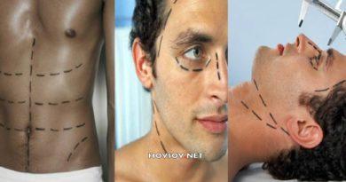 cirugías plásticas masculinas más comunes