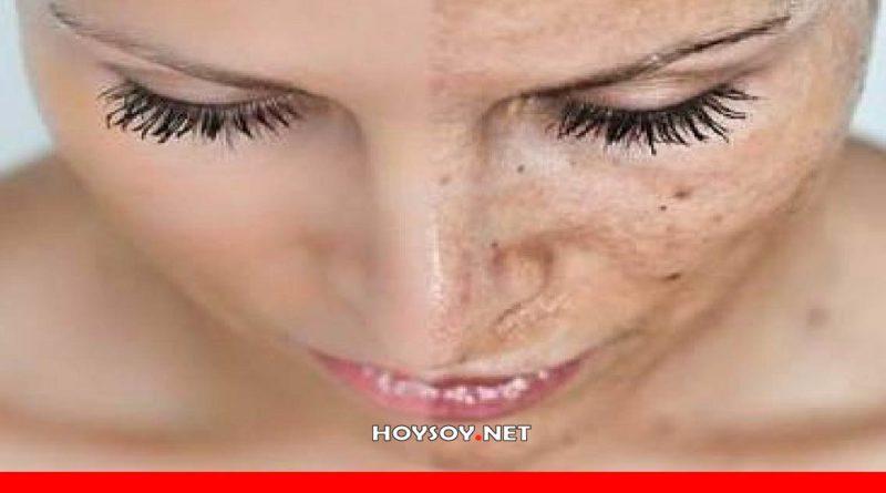 Efectos negativos de la contaminación en la piel