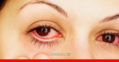 Remedios caseros para eliminar ojos rojos