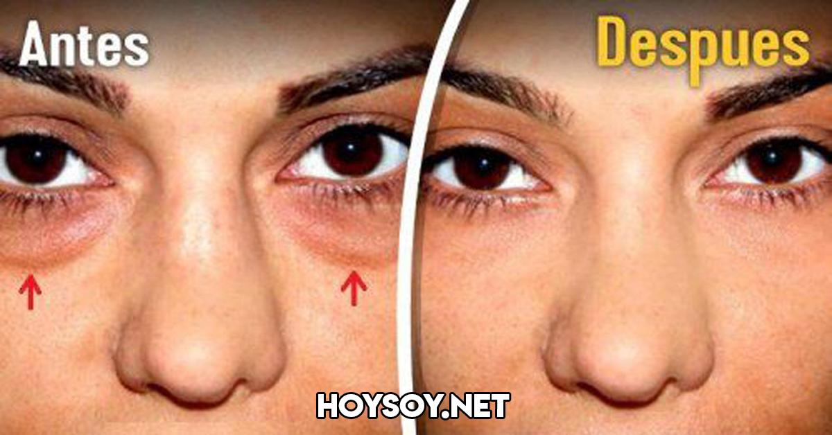 arrugas-ojos-gel-hoy-soy