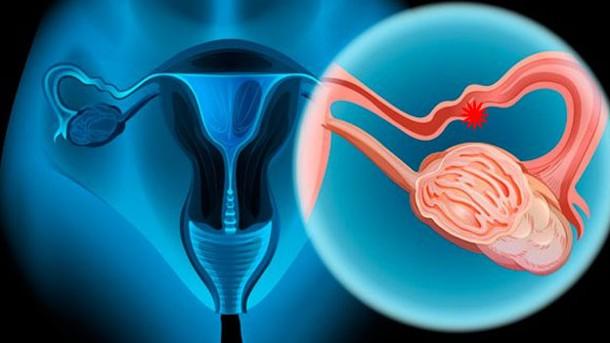 hoy-soy-cáncer-ovarios-pancreas